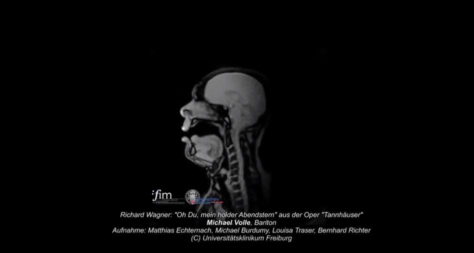 Wagner sung under an MRI